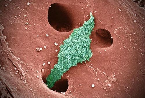 Hình ảnh Tìm hiểu về các loại bệnh viêm gan cấp tính, mãn tính và cách phòng ngừa