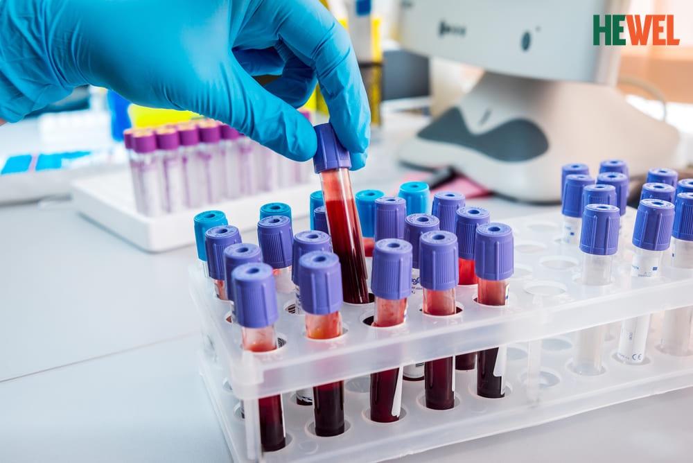 Xét nghiệm men gan và chuẩn đoán các bệnh lý gan, cách phòng, trị bệnh gan