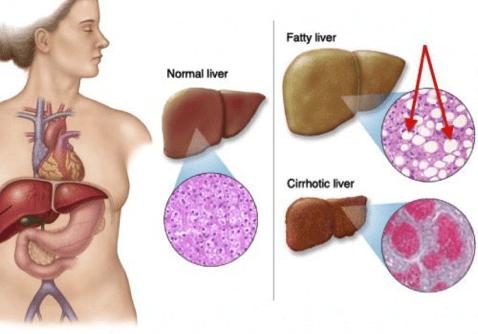 Nếu không phát hiện chữa trị kịp thời bệnh gan nhiễm mỡ độ 1 có thể dẫn đến xơ gan