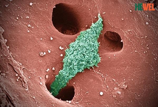 Hình ảnh dưới kính hiển vi của tế bào Kupffer trong xoang gan