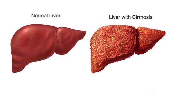 gan bình thường và gan xơ hóa