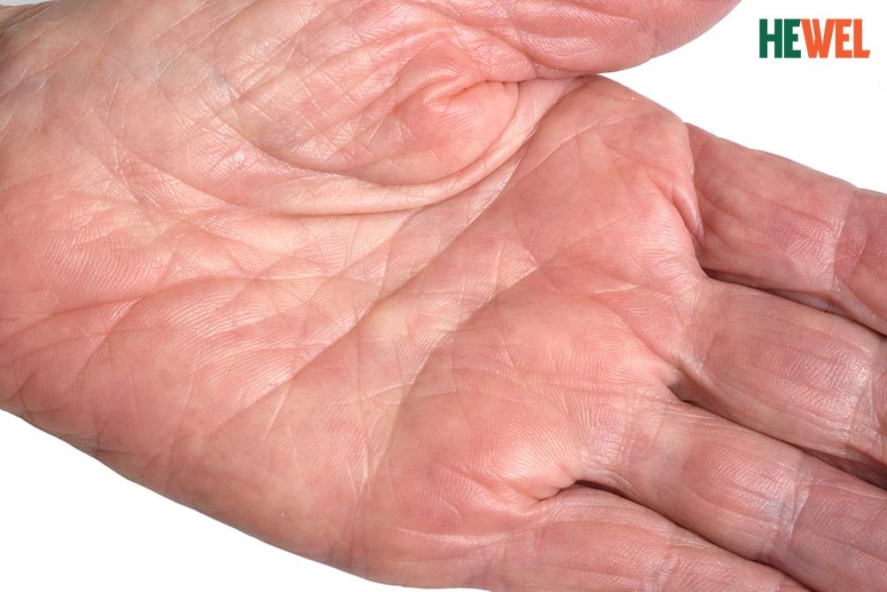 Hình ảnh 6 Triệu chứng cảnh báo bệnh gan nguy hiểm