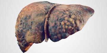 Xơ gan: diễn tiến âm thầm, tỉ lệ tử vong cao