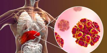Men gan cao có thể dẫn đến ung thư gan và nhiều tác hại khác