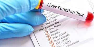 Cách đọc các chỉ số trong xét nghiệm chức năng gan