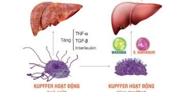 Tế bào Kupffer kích hoạt quá mức gây ra nhiều bệnh lý gan