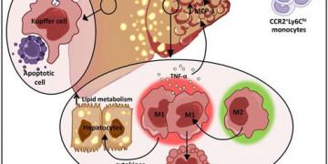 Tự ý tìm cách hạ men gan nhanh dễ bỏ qua nhiều bệnh gan khác