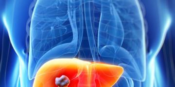 Ngứa là một triệu chứng của bệnh gan