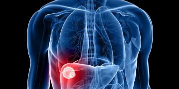 Phát hiện mới về Kupffer - nguyên nhân khiến gan suy yếu sớm và nhanh