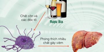 Cứu gan trước vấn nạn bia rượu
