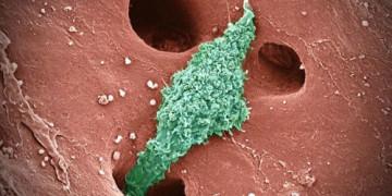 Tác nhân gây nhiều bệnh lý nguy hiểm cho gan