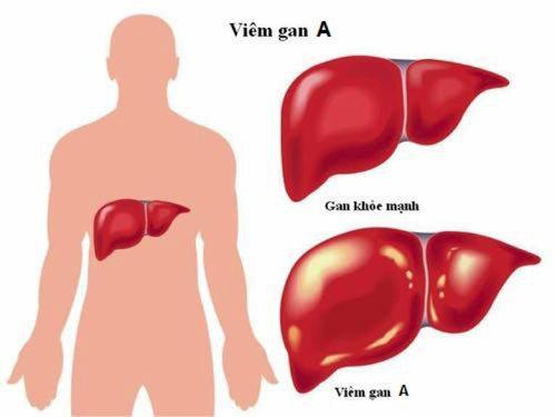 Tìm hiểu về bệnh viêm gan A và cách phòng ngừa - Hewel